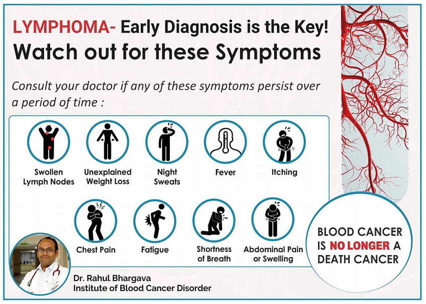 Lymphoma - A Curable Blood Cancer - Beat Blood Cancer