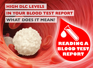 How to Read a Blood Test Report - High DLC Levels
