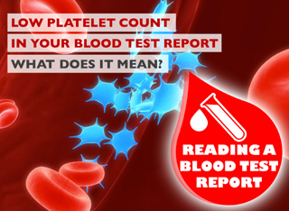 How To Read A Blood Test Report - Abnormal Platelet Count