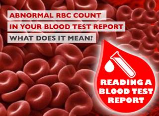 How to Read a Blood Test Report - Abnormal RBC Count