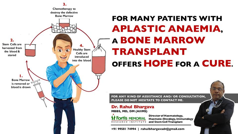 Bone Marrow Transplant – Big Hope For Aplastic Anaemia Patients